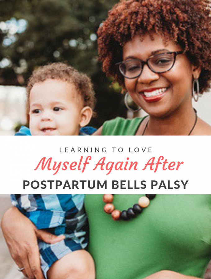 Having postpartum bells palsy is a scary experience--especially because you have no idea how long it will last and if the effects are permanant.